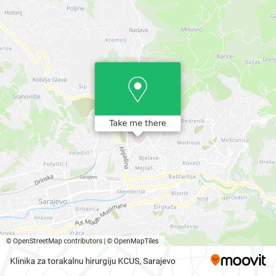 Klinika za torakalnu hirurgiju KCUS map