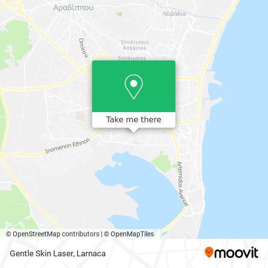 Gentle Skin Laser χάρτης