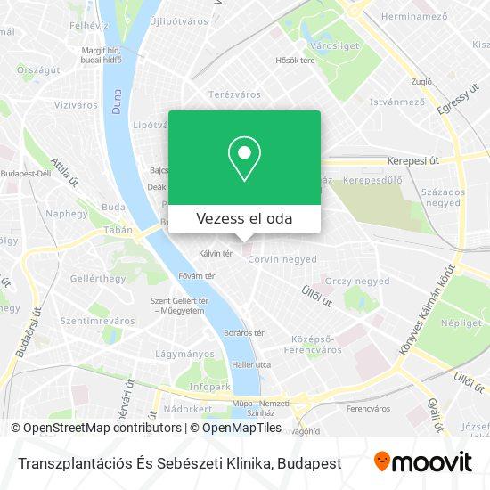 Transzplantációs És Sebészeti Klinika térkép