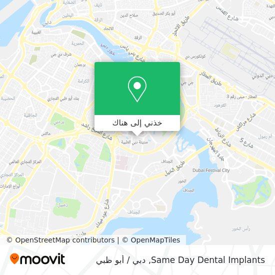 خريطة Same Day Dental Implants